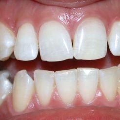 Oscurecimiento por endodoncia DESPUÉS