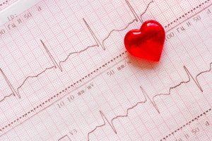 aburzenia rytmu serca, przyczyny, objawy i leczenie