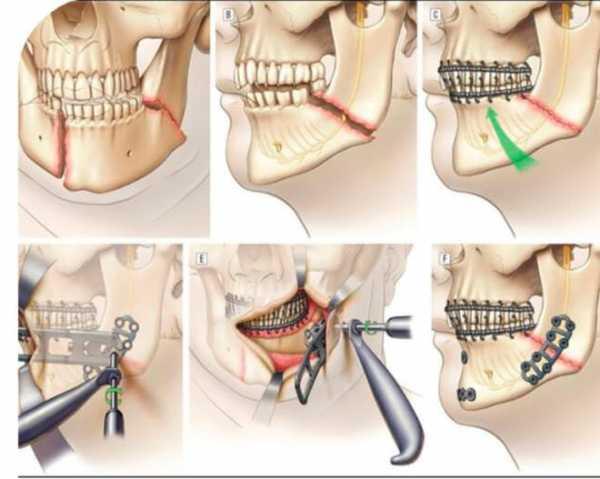Фото шинирование при переломе челюсти