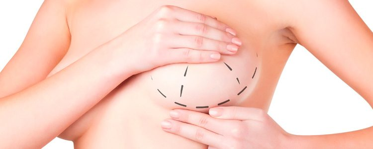 Reducción mamaria en Alicante