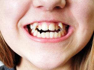 underbite, overbite & crooked teeth
