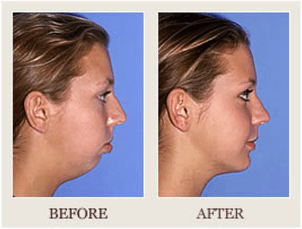 jaw surgery before after overbite