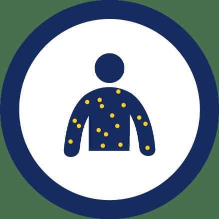 Child Eczema