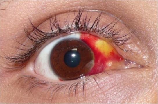 Hemorragia em reabsorção com descoloração amarela