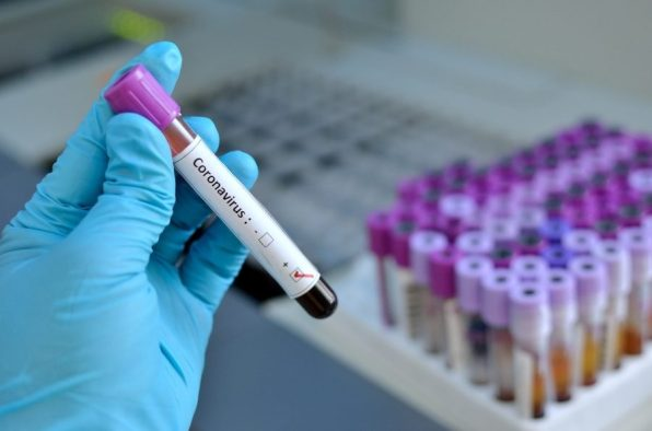 Coronavirus_concept_with_blood_vial_jarun011_Getty_Images