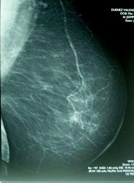 437px-Mamografía_BIRADs_IV
