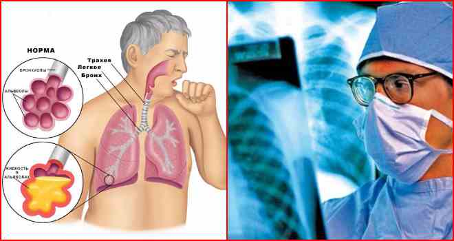 тубик пневмония