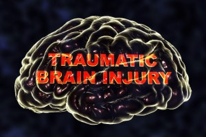 Medical marijuana for treating traumatic brain injury