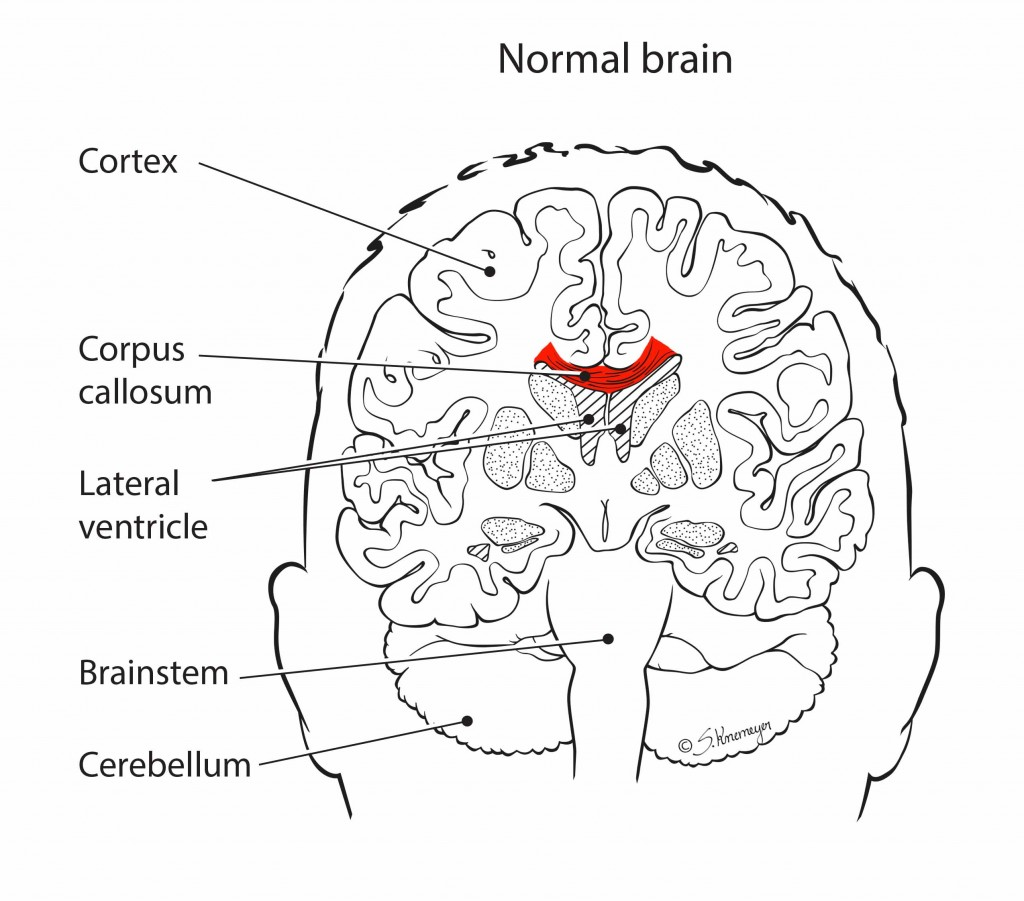 Agenesis Of The Corpus Callosum Ohio Fetal Medicine