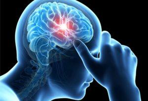 painful-headaches