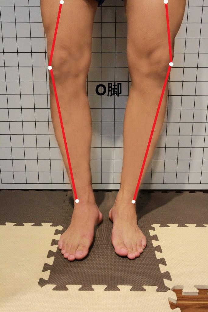 様々な怪我の要因となるO脚の足