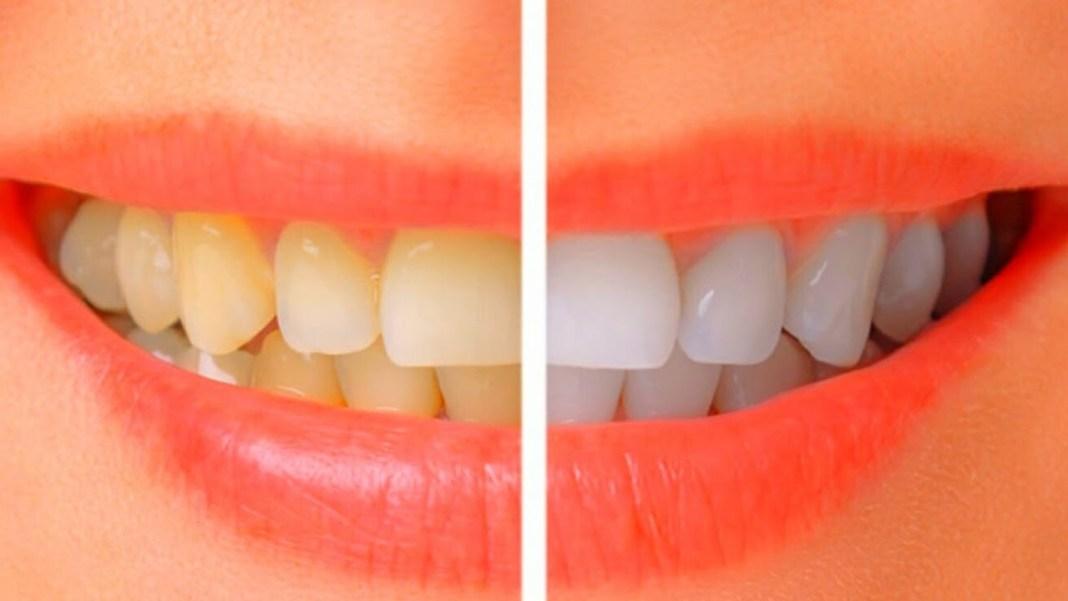 Cara Terbaik Putihkan Gigi