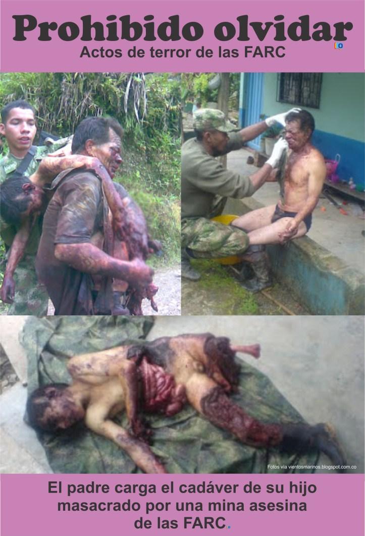 Nino masacrado por mina de las FARC