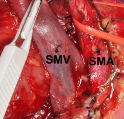 Superior mesenteric vein and artery