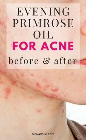 evening-primrose-oil-for-acne