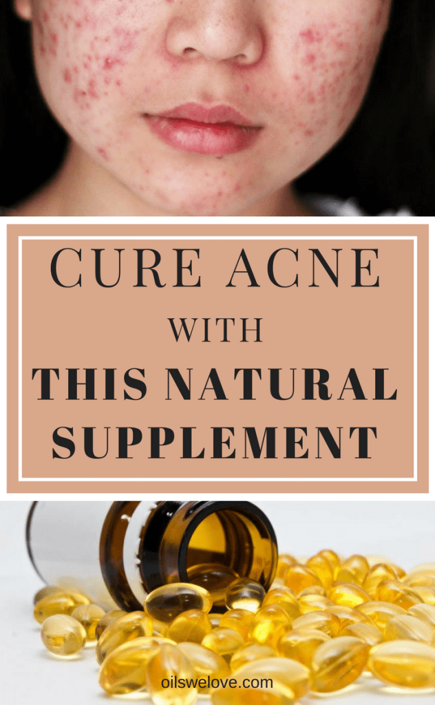 natural-acne-supplement-cure