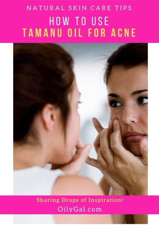 tamanu oil for pimples