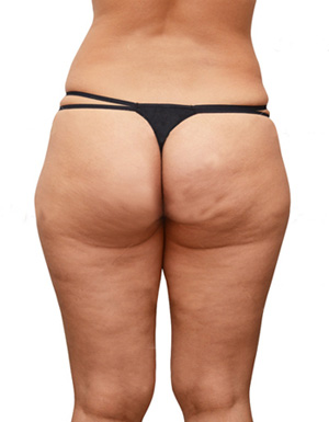 Cellulite. What is cellulite?