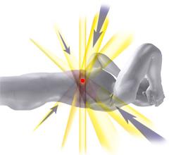 定位放射線治療のイメージ図
