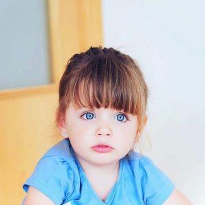 m2 2 300x300 - Kara Gözlülerin Çocuğu Nasıl Mavi Gözlü Olabilir?
