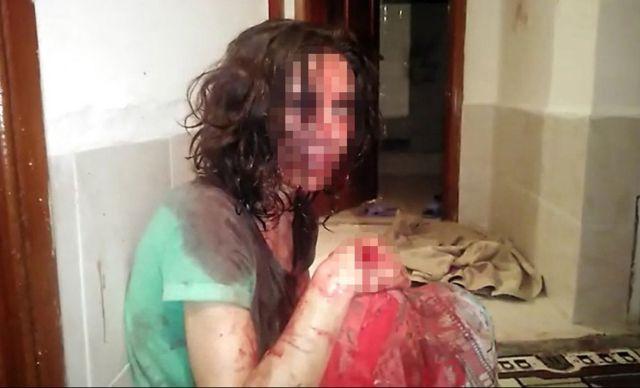 antalyada esinden olumcul siddet goren kadinin komsulari bu ilk degil 0 lVgrjJzq - Antalya'da eşinden ölümcül şiddet gören kadının komşuları: Bu ilk değil