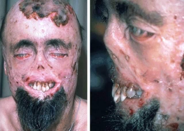 porfiria vampir hastaligi - İlginç Hastalıklar