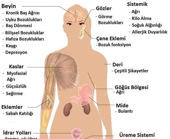 Fibromiyalji sendromu (fms)