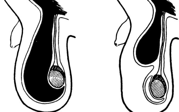 Водянка яичка у ребенка: причины, лечение без операции ...