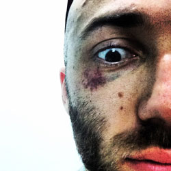 muay thai injury black eye