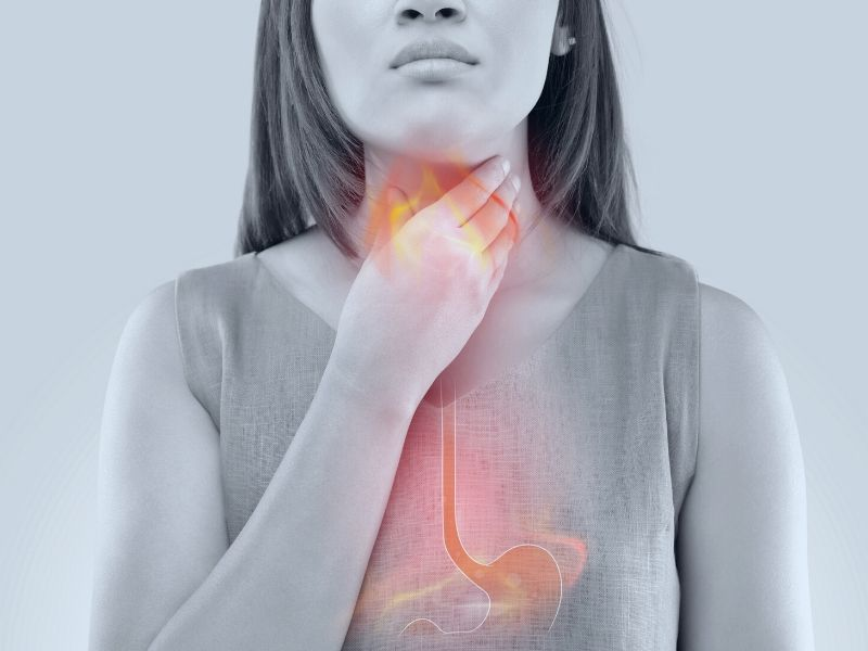 How Can I Relieve Acid Reflux?