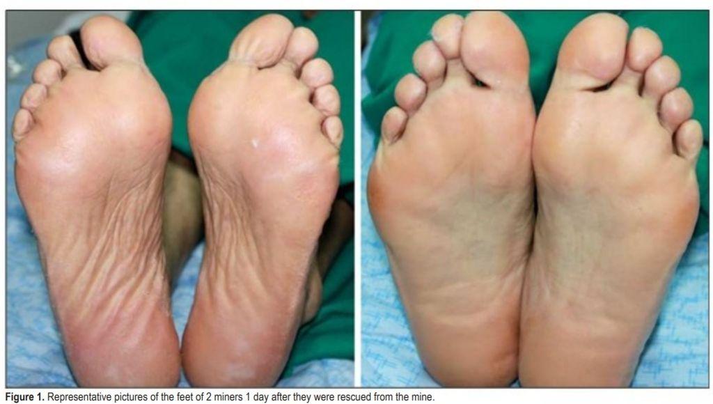 , Eculage™ Diabetic Socks