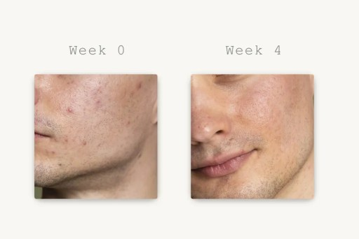 how to prevent and remove acne, A NEW SKINCARE APPROACH TO TREAT ACNE