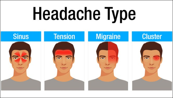 Image result for types of headache