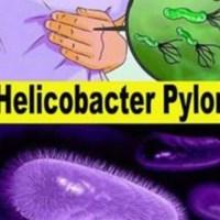 Helicobacter Pylori împiedică scăderea în greutate și provoacă, printre altele, balonare