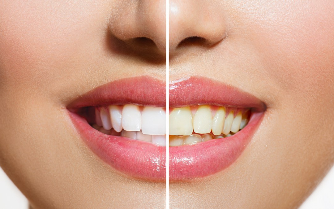 Four reasons we love take home whitening