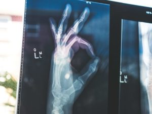 Cómo Lidiar Con Tu Artritis