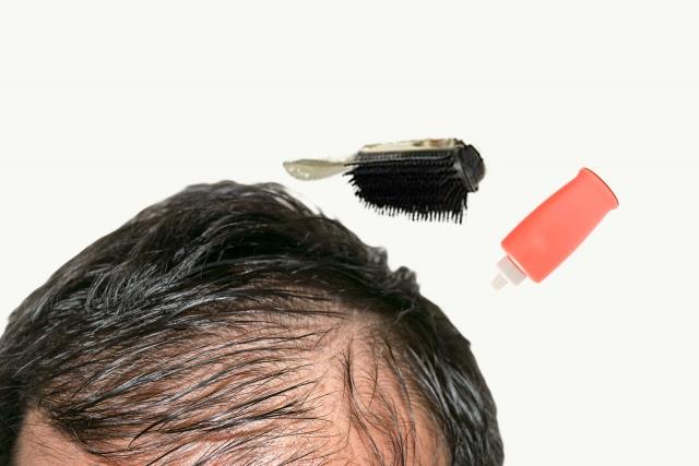 薄毛対策と方法