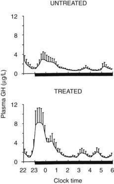 Endocrine Rhythms, the Sleep-Wake Cycle, and Biological