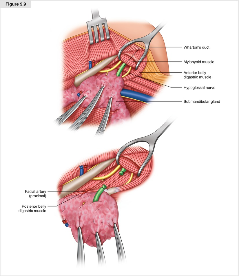 Modified Neck Dissection for Differentiated Thyroid Cancer ...