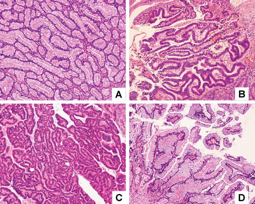 villous papilloma gallbladder)