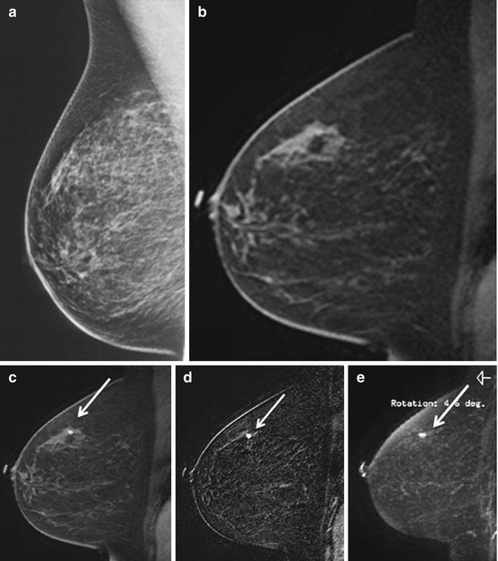 Abbreviated Breast MRI | Oncohema Key
