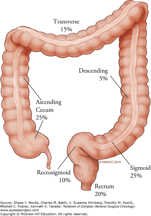 Colectomy Approaches For Colorectal Cancer Oncohema Key