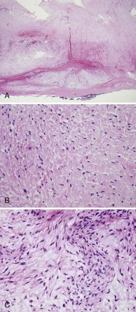 Nonrhabdomyosarcoma Soft Tissue Sarcomas and Other Soft
