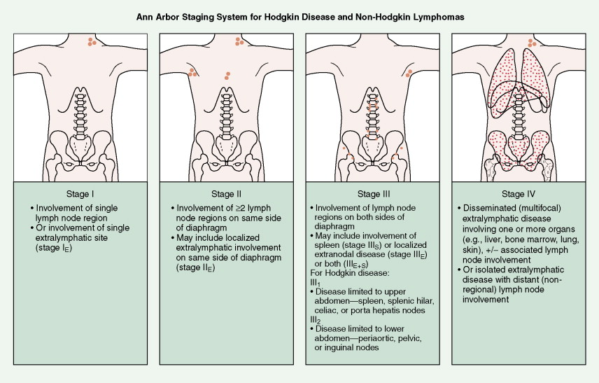 Hodgkin Disease And Non Hodgkin Lymphomas Oncohema Key