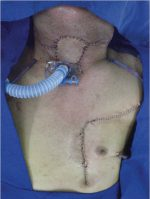 28 Reconstruction for Advanced Cancer: Pectoralis Major Myocutaneous Flap