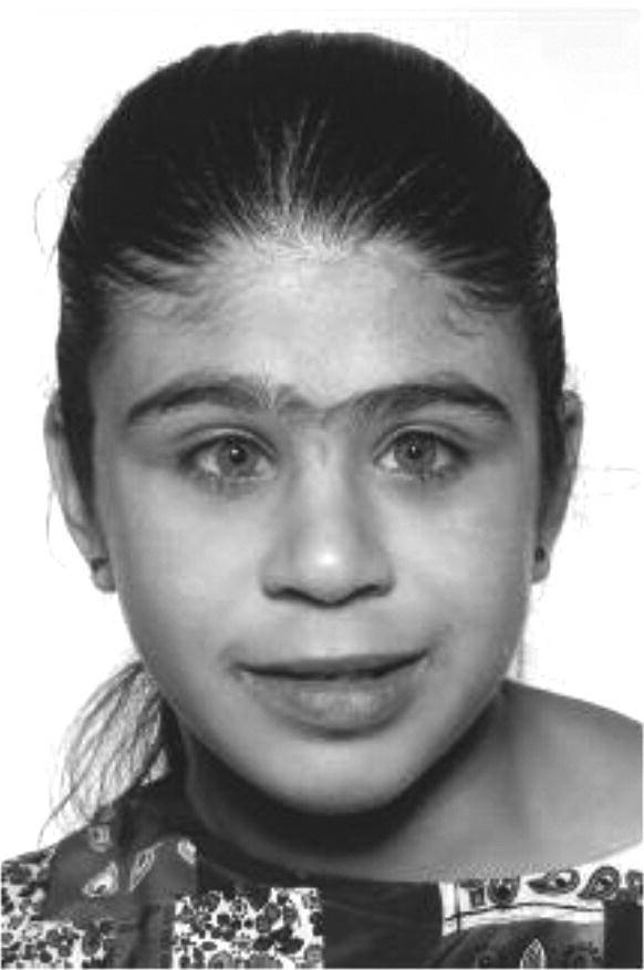 Photo of a girl with Williams syndrome.