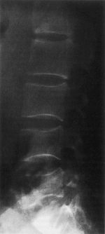 Osteoporosis associated with rheumatologic disorders