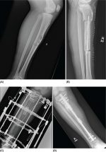 Surgical Approach and Surgical Reconstruction Options in Treatment of Bone Sarcomas