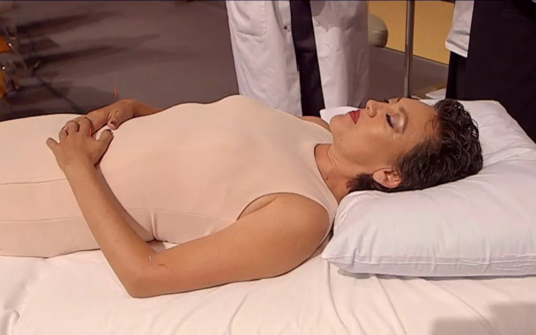 What an acupuncture treatment looks like in real