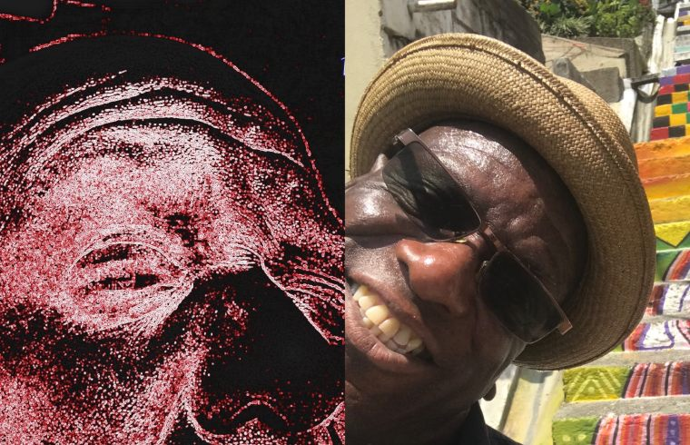 Greggo pre and post bipolar